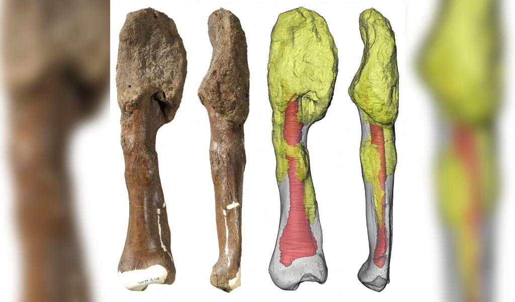Kuitbeen van een dinosaurus met botkanker. Door de kanker is de bovenkant van het bot vervormd.   (beeld Danielle Dufault en Royal Ontario Museum / McMasterUniversity)
