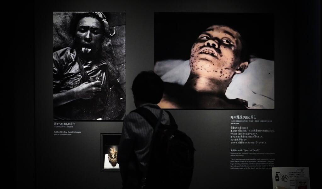 Een bezoeker van het Hiroshima Peace Memorial Museum bekijkt foto's van Japanse soldaten, die gewond zijn geraakt door de atoombommen op Hiroshima en Nagasaki, deze week 75 jaar geleden.   (beeld epa / Dai Kurokawa)