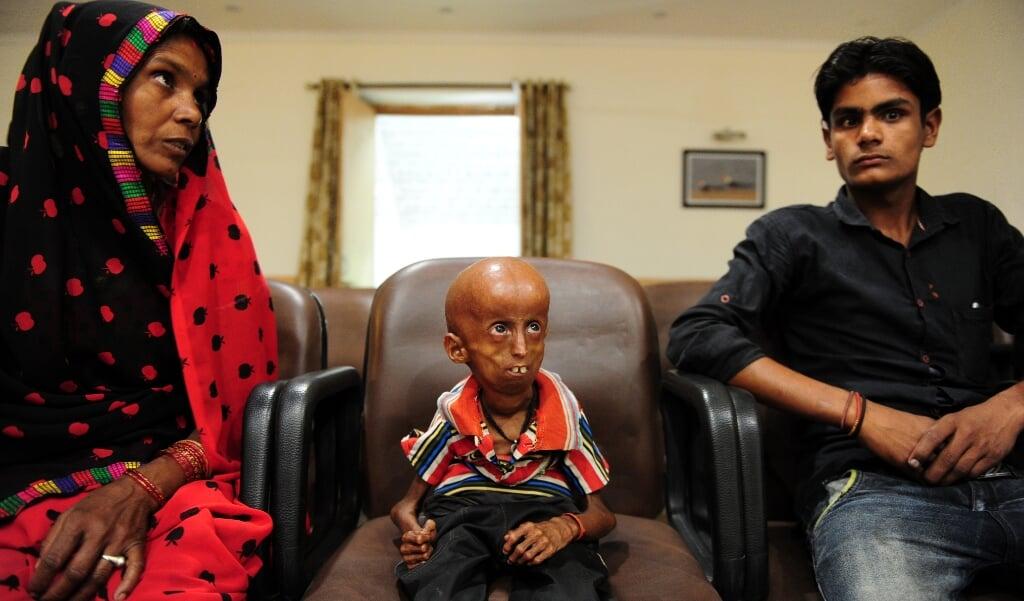 De destijds 21 jaar oude Indiase progeriapatiënt Rupesh (midden) in 2017. De aandoening komt voor bij één op de vier miljard kinderen.  (beeld afp / Sanjay Kanojia)