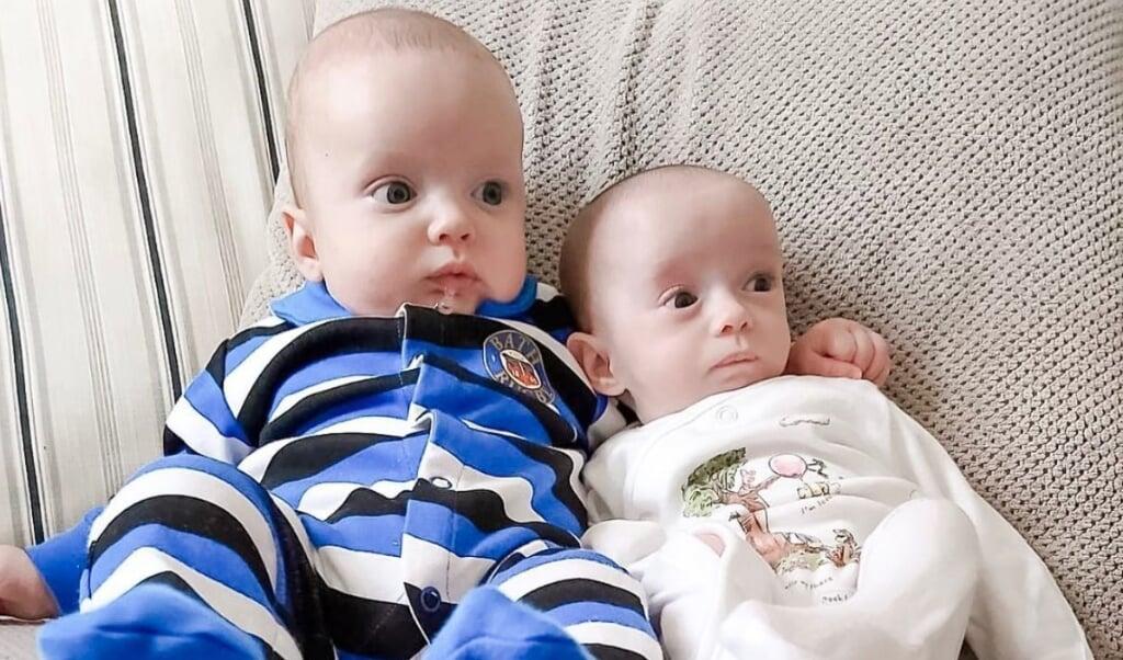 Zo'n tweeling kom je niet vaak tegen.  (beeld @roberts.supertwins)
