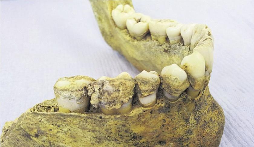 Oude tanden verraden vroege melkconsumptie